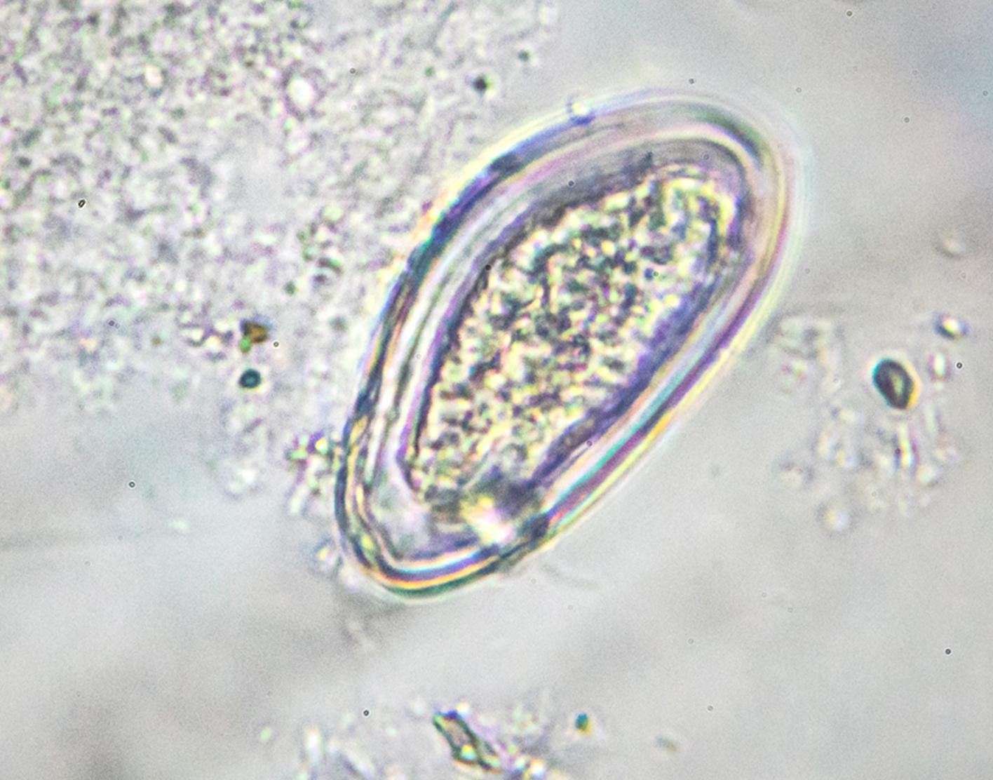 Az enterobiosis pinworms